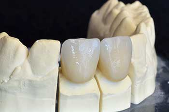 Rochester Dental Crowns