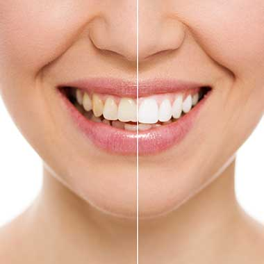 Teeth Whitening in Rochester